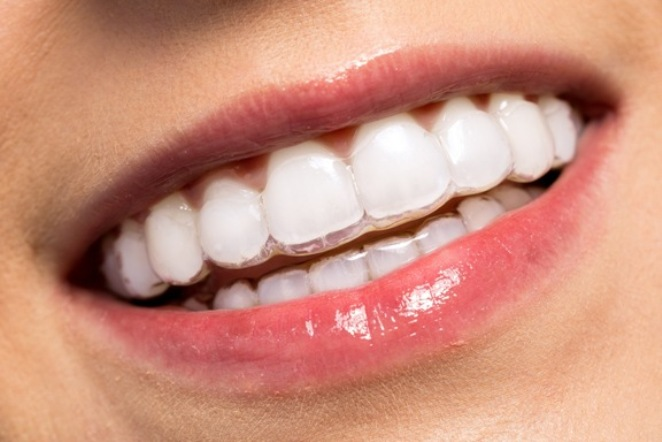 How Much Should Invisalign Treatment Cost?